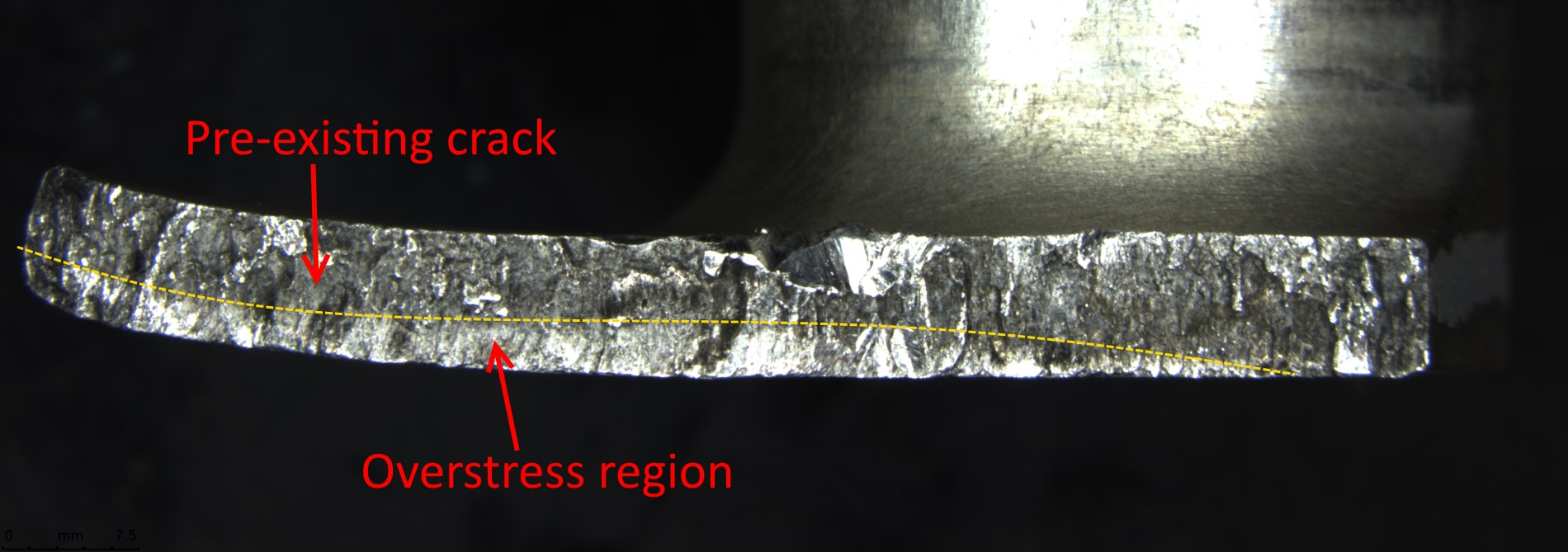 Figure 3: Fracture surface illustrating the pre-existing crack and the overstress region, which fractured when the bracket finally failed.