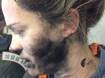 Woman injured after a pair of her own battery-operated headphones exploded